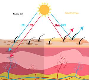 Hautschicht-UV-Stahlung-UVA-UVB-Haut